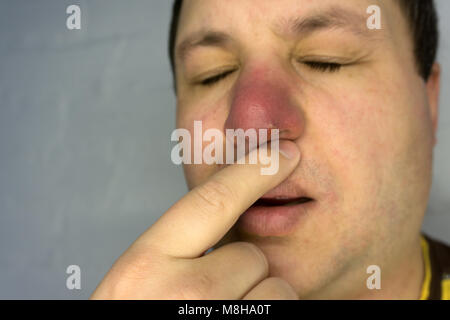 Red pimple on face macro, abscess and acne Stock Photo: 221836894