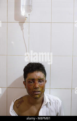 Dhaka. 19th Mar, 2018. Mahmudul Hasan Maruf, suffers from acid attack thrown by a girl cause of refusal of love - Stock Photo