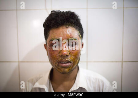 Dhaka, Bangladesh. 19th Mar, 2018. Mahmudul Hasan Maruf, suffers from acid attack thrown by a girl cause of refusal - Stock Photo