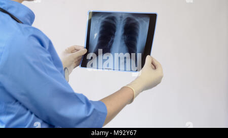 Female therapist analyzing lungs x-ray, patient examination result, diagnosis - Stock Photo