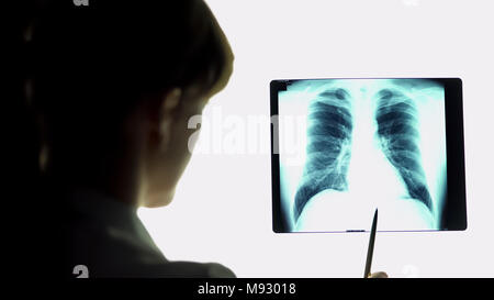 Therapist analyzing pneumonia lungs x-ray image, making conclusions, healthcare - Stock Photo