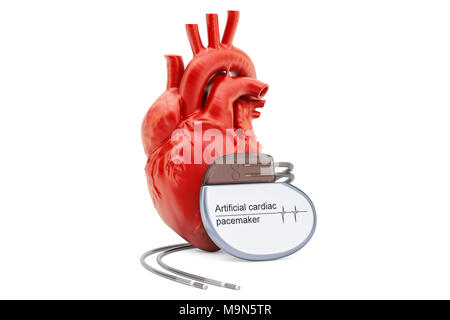 Artificial cardiac pacemaker with human heart, 3D rendering isolated on white background - Stock Photo