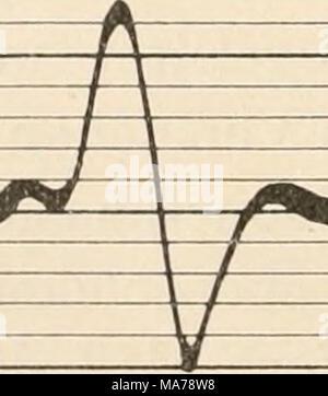 . Elektrophysiologie menschlicher Muskeln . Abb. 20. Dasselbe vom roten Milsc. soleus. Längere Dauer des Aktionsstroms und größere Zeitdistanz der (iipfelpunkte, als in Abb. 19. ('Nacli Kohlrausch.i Pflanzungsgeschwindigkeiten der Kontraktionswellen zueinander stehen. Vergleiche der doppelphasischen Ströme vom Gastrocnemius und Soleus der Katze führen zu demselben Ergebnis wie beim Kaninchen. Der Vergleich der Abb. 21 und 22 zeigt auf das deutlichste den Unterschied in den zeitlichen Verhältnissen des Erregungsablaufes zwischen roten und weißen Muskeln. Mißt man die Gipfelabstände der doppelph - Stock Photo