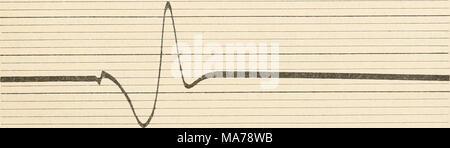 . Elektrophysiologie menschlicher Muskeln . Abb. 22. Dasselbe. Koter Muse. Soleus der Katze. Elektrodendistanz 20 mm. Erheblich längere Dauer und größerer Gipfelabstand der Stromperiode, als in Abb. 21. (Nach Kohl rausch.) abstand aufgenommen sind, so ist auch hier das Verhältnis etwa 4:3. Der Wellenlängenunterschied ist aber noch beträcht- lich größer. Das Verhältnis ist hier etwa 3:2. Die relative Trägheit der roten Muskeln kommt also in diesen Messungen ganz eklatant zum Vorschein. - Stock Photo