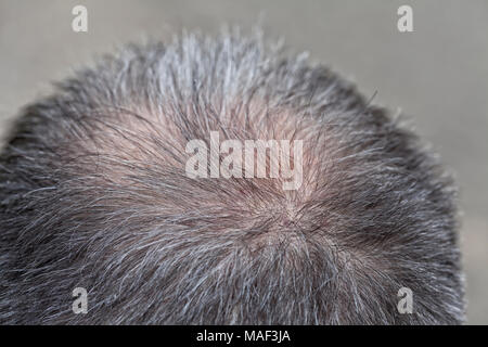 A middle-aged man begins to lose the hair on his head. - Stock Photo
