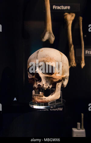 Human skull from wreck of the Mary Rose; warship of English Tudor navy of King Henry VIII. The Mary Rose Museum, Historic Dockyard, Portsmouth. UK - Stock Photo