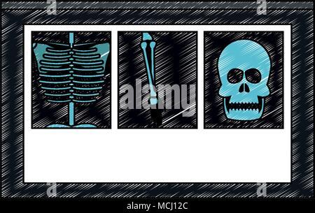Xray bones images scribble - Stock Photo