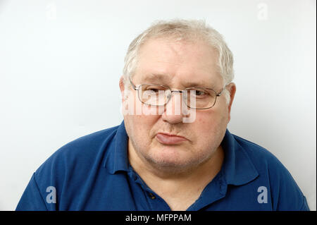 Elderly man suffering from Bell's Palsy Bell's palsy is a form of facial paralysis resulting from a dysfunction of the cranial nerve VII (the facial n - Stock Photo