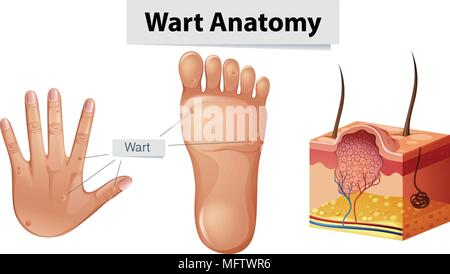 Human Anatomy Wart on Hand and Foot illustration - Stock Photo