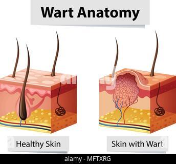 Wart Human Skin Anatomy Illustration illustration - Stock Photo