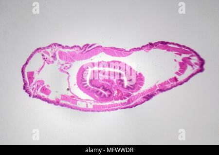 Microscopic photography. Earthworm, transversal section. - Stock Photo