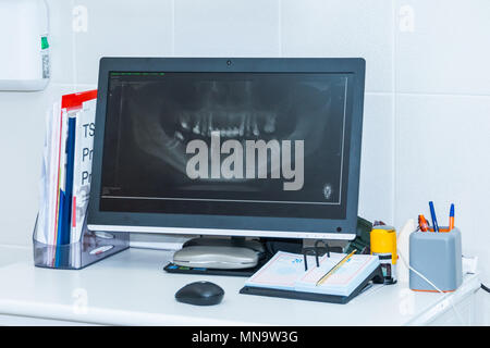 Dentist table in clinic.Medical equipment for the dentists. mouth x-ray on computer - Stock Photo