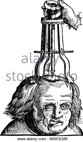 . Illustration in a 1517 book showing a then method for treating a depressed skull fracture . 1517. Uploaded February 7, 2008. Von Gersdorf, Hans. Feldbuch der Wundartzney, 1527. Wellcome Library, London. 182 Elevating depressed skull fracture - Stock Photo