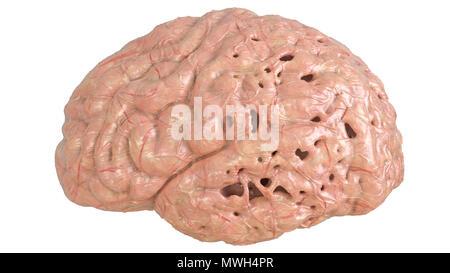 Brain in severe brain disease, Dementia, Alzheimer, Chorea Huntington - 3D Rendering