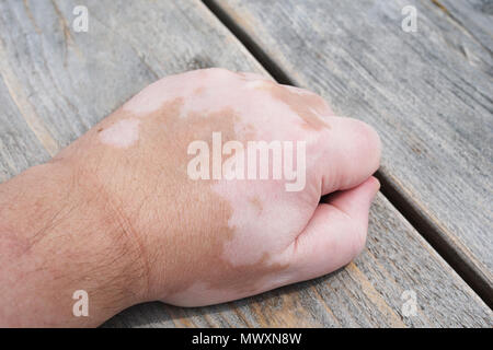 male hand with vitiligo skin condition, characterized by white unpigmented patches or blotches - Stock Photo