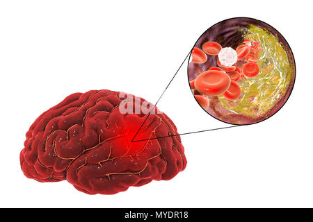 Stroke due to atherosclerosis. Illustration of an arterial blockage (expanded view at upper right) causing a stroke (cerebrovascular accident, CVA). This stroke is due to a build-up of the plaque that forms in atherosclerosis. This blockage causes an interruption (occlusion) of the oxygenated blood supply. This will cause a stroke, where the brain is damaged due to hypoxia (lack of oxygen). The grey area at upper right shows the area of the brain affected by lack of oxygen. This type of stroke is known as an atherosclerotic stroke. Common causes are high blood pressure and arterial disease. - Stock Photo