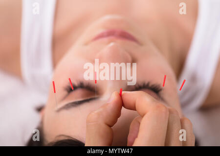 Beautiful Young Woman Getting Acupuncture Treatment In Beauty Spa - Stock Photo