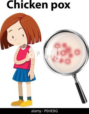 Young girl with Chicken Pox illustration - Stock Photo