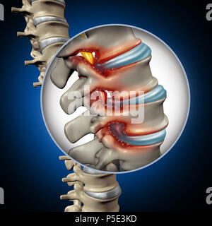 Spinal Stenosis medical concept as a degenerative illness in the human vertebrae causing compressed spine nerves human body disease. - Stock Photo
