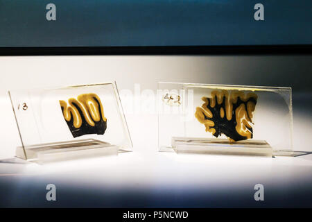 Two histological sections from the brain of Albert Einstein (1879-1955) shown in the exhibition 'The Brain - Intelligence, Awareness, Feeling' in the LWL Museum of Natural History, Münster, Germany, Jujy 2018 (Lender: Mütter Museum, Philadelphie) - Stock Photo