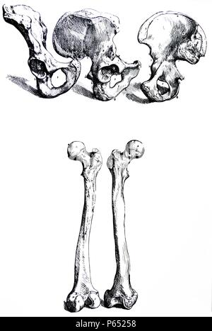 The Plates from the First Book of the De Humani Corporis Fabrica by Andreas Vesalius, (1514-1564) Plate 17 - In these three figures the bone joined to the right side of the sacrum is delineated. - Stock Photo