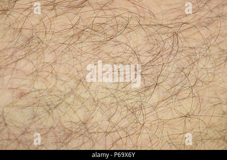 Close up detail of human skin with hair. Mans hairy leg . - Stock Photo