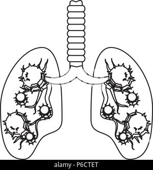 Lungs with an infection  over white background, vector illustration - Stock Photo