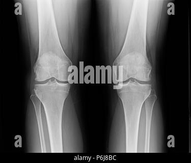 X-ray of knees of mature female suffering from minor osteoarthritis and bone spurs. - Stock Photo