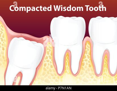Compacted Wisdom Tooth Diagram Illustration Stock Vector Art