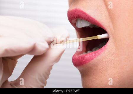 Dentist's Hand Taking Saliva Test From Woman's Mouth With Cotton Swab - Stock Photo