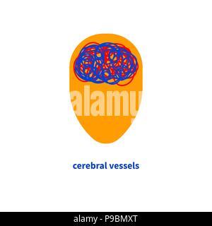 Vessels of brain - Stock Photo
