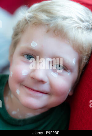 portrait of a young blond boy with chicken pox and white ointment - Stock Photo