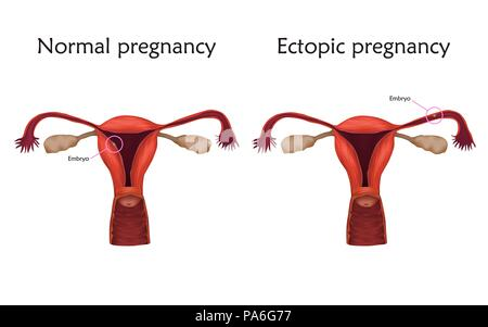 Ectopic and normal pregnancy, illustration. In an ectopic pregnancy the embryo implants in the fallopian tube, not in the uterus. - Stock Photo