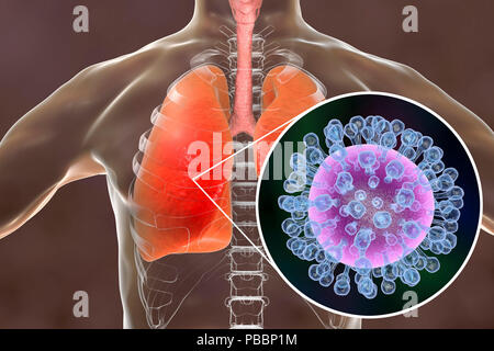 Pneumonia caused by flu, computer illustration. Pneumonia is one of the common complications of a flu infection. - Stock Photo