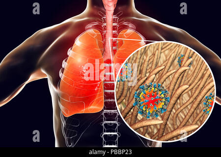 Pneumonia caused by measles viruses, conceptual computer illustration. Measles virus, from the Morbillivirus group of viruses, consists of an RNA (ribonucleic acid) core surrounded by an envelope studded with surface proteins haemagglutinin-neuraminidase and fusion protein, which are used to attach to and penetrate a host cell. Measles is a highly infectious itchy rash with a fever. It mainly affects children, but one attack usually gives life-long immunity. Pneumonia is one of common complications of measles. - Stock Photo