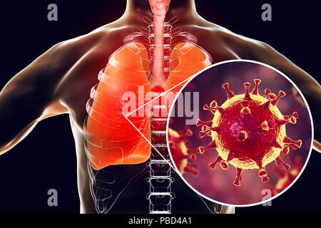 MERS virus infection of lungs, conceptual illustration. MERS (Middle East respiratory syndrome) is a viral respiratory illness caused by the MERS-associated coronavirus (MERS-CoV). Formerly known as novel coronavirus, MERS was first identified in Saudi Arabia in 2012. Most people infected with MERS develop severe acute respiratory illness with symptoms of fever, cough, and shortness of breath. - Stock Photo