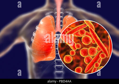 Pneumonia caused by Mycoplasma pneumoniae bacteria, conceptual computer illustration. - Stock Photo