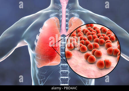 Pneumonia caused by Streptococcus pneumoniae bacteria, conceptual computer illustration. S. pneumoniae bacteria are Gram-positive diplococci (arranged in pairs), they are the main cause of community acquired pneumonia in children and the elderly. - Stock Photo