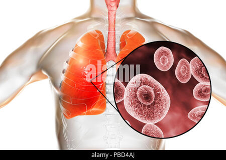 Pneumocystis pneumonia, conceptual computer illustration. This lung infection is the most common opportunistic illness in people infected with HIV (Human Immunodeficiency Virus) and is caused by the fungus Pneumocystis jaroveci (previously P. carinii). Treatment involves the use of antibiotics and bed rest. - Stock Photo