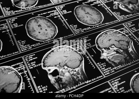 Magnetic resonance scan of the brain. MRI head scan. - Stock Photo
