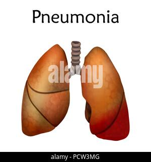 Pneumonia, illustration. An inflammatory condition of the lung. - Stock Photo