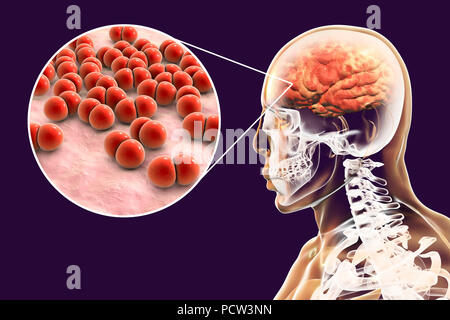 Brain infection caused by Streptococcus pneumoniae bacteria, computer illustration. S. pneumoniae are Gram-positive bacteria arranged in pairs (diplococci), they are common causative agents of infections of different location, including bacterial meningitis, meningoencephalitis and encephalitis. - Stock Photo