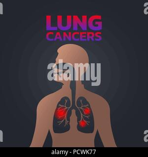 lung cancers icon design, infographic health, medical infographic. Vector illustration - Stock Photo
