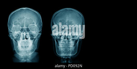 X-ray skull & cervical spine (lateral) with \