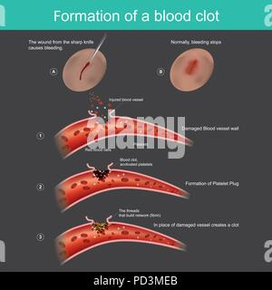 The wound from the sharp knife on skin Slightly bleeding, The body can respond to stop blood out flow from the capillaries, And anti-bacterial through - Stock Photo