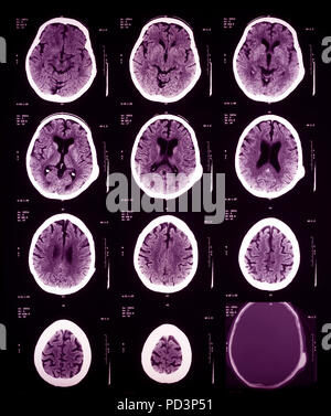 Sequence of horizontal sections of a female human brain, MRI scans, magnetic resonance imaging, - Stock Photo