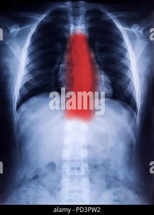 X-Ray Film of Human Spine Scoliosis for Medical Diagnosis - Stock Photo