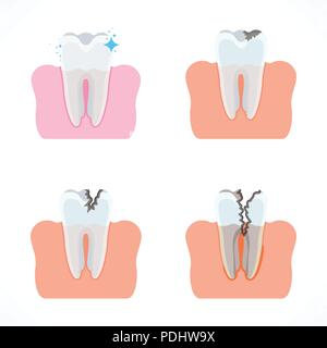 Stages of tooth decay with caries  Dentistry and oral care