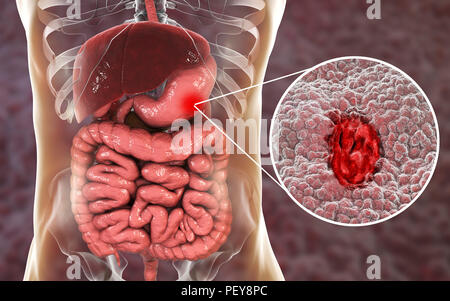 Gastric (stomach) ulcer, illustration. Gastric, or peptic, ulcers ...