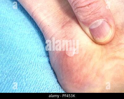 Uncraced terrible blister on human heel. Wet painful skin - Stock Photo